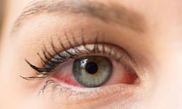 Occhi sensibili, congiuntiviti